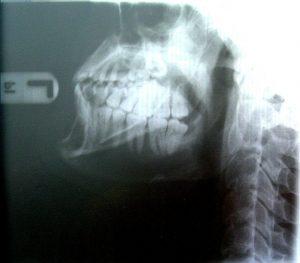röntgen a fogászatban